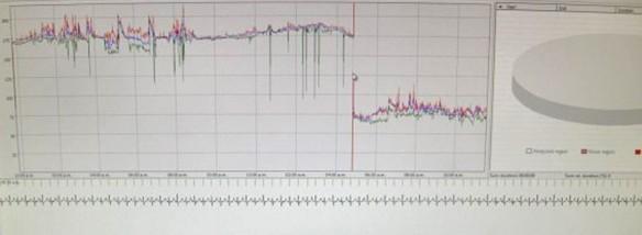 EKG-2-900x330