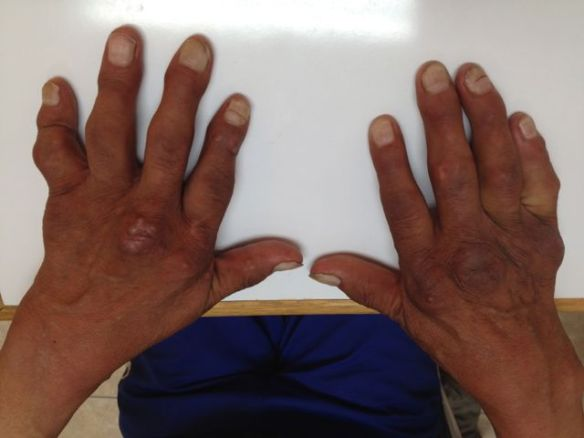 Gout can be cripple you when left untreated for years.  In the US, we can give medicines to help with flares of gout as well as medicines to prevent flares and decrease the amount of uric acid in the body to prevent these deformities.  Here in Peru, the medicines are available (in some places), but the access to care is the big stumbling block to better health.