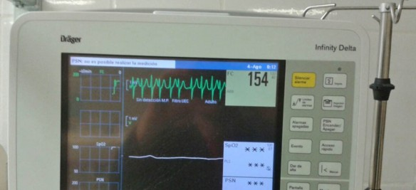 The pulse is more than 150 per minute. The patient is in shock.